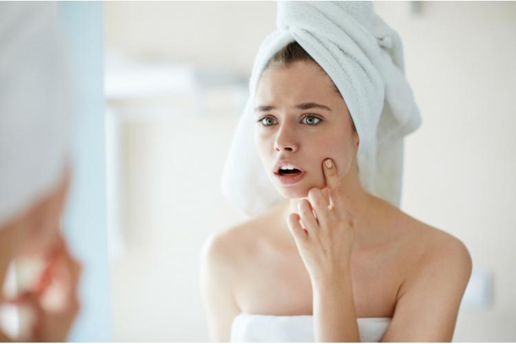 Acne Treatment & Care